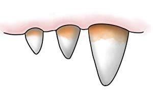 Fjernelse af tandsten hos hunde